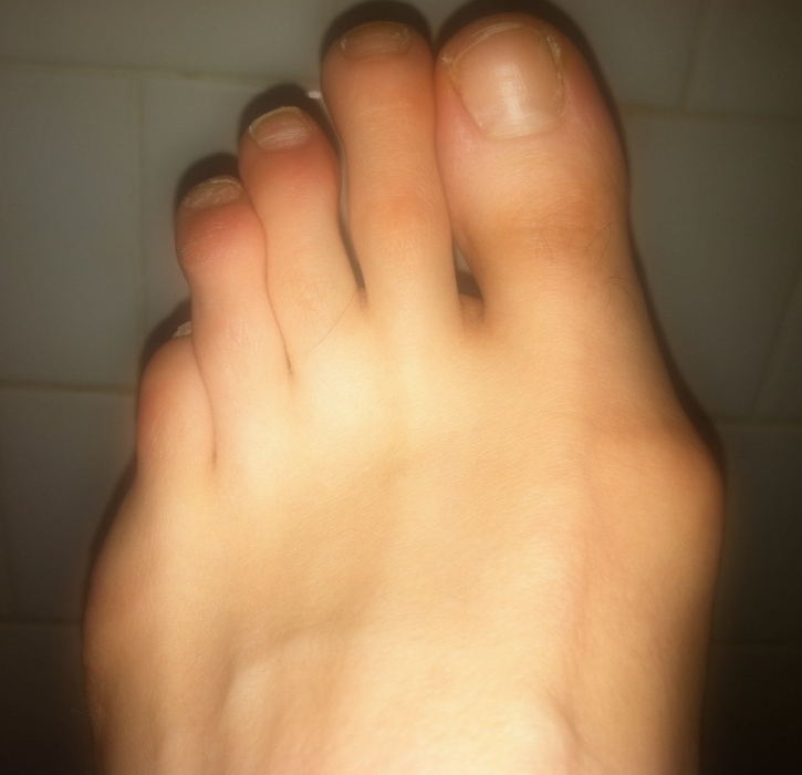 Whatthefoot